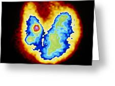 Coloured Gamma Scan Of Goitre Of The Thyroid Gland Greeting Card