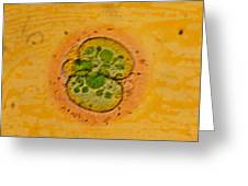 Coloured Lm Of A Human Embryo At Two-cell Stage Greeting Card