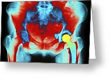 Coloured X-ray Of An Artificial Hip Joint Greeting Card