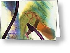 Coloured X-ray Of Gall Bladder During Endoscopy Greeting Card