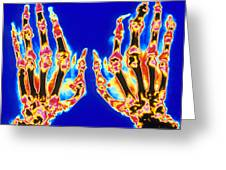 Coloured X-ray Of Hand In Gouty Arthritis Greeting Card