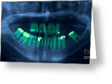 Dental X-ray Greeting Card