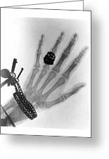 Early X-ray Photograph Of A Hand Taken In 1896 Greeting Card