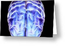 Electrical Activity In The Brain Greeting Card