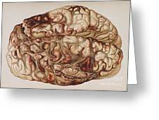 Encircling Gunshot-wound In Brain, 1898 Greeting Card