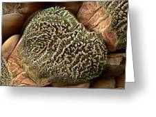 Gecko Foot Hairs, Sem Greeting Card