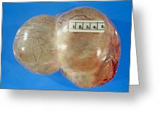 Gross Specimen Of A Simple Ovarian Cyst Greeting Card