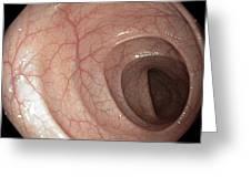 Healthy Colon, Large Intestine Greeting Card by Gastrolab