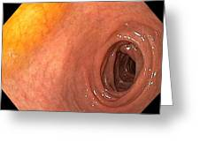 Healthy Duodenum Greeting Card