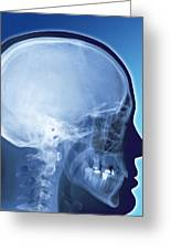 Healthy Skull, Coloured X-ray Greeting Card