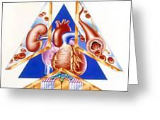 High Blood Pressure, Artwork Greeting Card