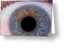 Human Eye Greeting Card