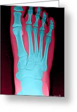 Human Foot Greeting Card