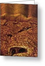 Human Skin, Light Micrograph Greeting Card by Robert Markus