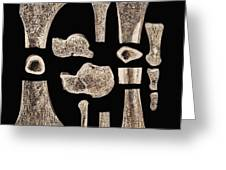 Inner Structure Of Bones Greeting Card