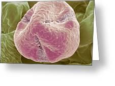 Kiwi Fruit Pollen Grain, Sem Greeting Card by Steve Gschmeissner