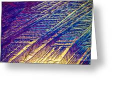 Light Micrograph Of Zalcitabine Ddc Greeting Card