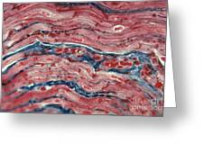 Lm Of Cardiac Muscle Greeting Card
