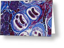 Lm Of Trichina Larvae Encysted In Muscle Tissue Greeting Card
