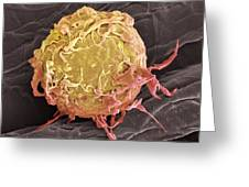 Lymphoma Cancer Cell, Sem Greeting Card