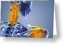 Neck And Shoulder Pain,computer Artwork Greeting Card
