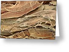 Neural Connective Tissue, Sem Greeting Card