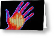 Non-smoker Hand Thermogram Greeting Card