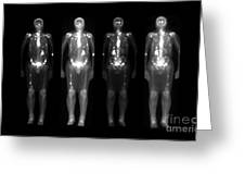 Nuclear Medicine Bone Scan Greeting Card