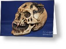 Old Bone's Skull On Blue Cloth Greeting Card