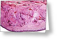Ovary Tissue, Light Micrograph Greeting Card by Dr Keith Wheeler