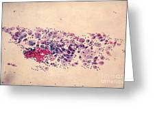 Pap Smear, Parabasal Cells Greeting Card by Science Source