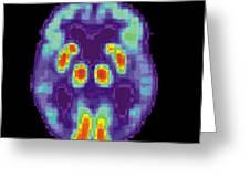 Pet Scan Of Alzheimers Disease Brain, 2 Greeting Card