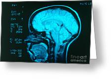 Radiology Angiography Of Brain Greeting Card