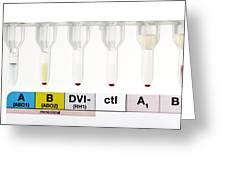 Rhesus Test On Blood: Negative Result Greeting Card