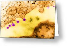 Rubella Virus German Measles, Tem Greeting Card by Science Source
