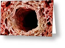 Sem Of Lung Greeting Card