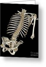 Skeletal Reconstruction Greeting Card