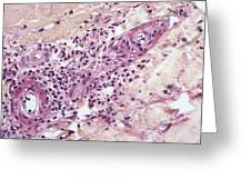 Skin Inflammation, Light Micrograph Greeting Card