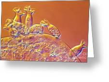 Spirochona Greeting Card