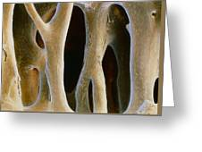 Spongy Bone Greeting Card
