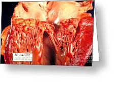 Subacute Bacterial Endocarditis Greeting Card