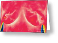 Thermogram Of Lactating Womans Breasts Greeting Card