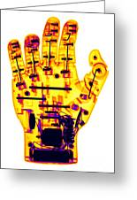 Toy Robotic Hand X-ray Greeting Card