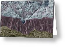 Trachea Mucous Membrane, Sem Greeting Card