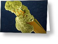 Uranyl Acetate Crystals, Sem Greeting Card