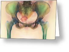 Uterine Fibroid Greeting Card