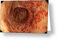 Vascular Ectasia In The Stomach Greeting Card