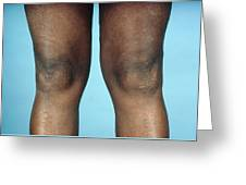 View Of Knees Affected By Osteoarthritis Greeting Card