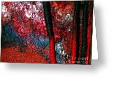 Waterfall Of Dreadlocks  Greeting Card