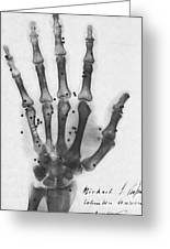X-ray Of A Hand With Buckshot Greeting Card